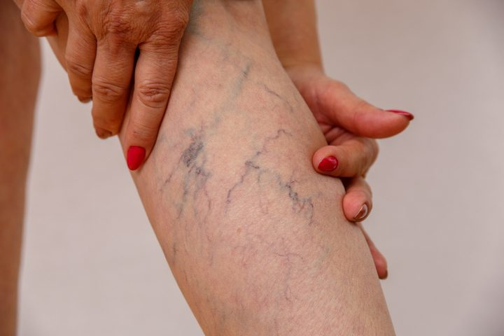 What Can Be The Best Treatment For Varicose Veins?